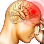 Baş Ağrısı Ve Migren