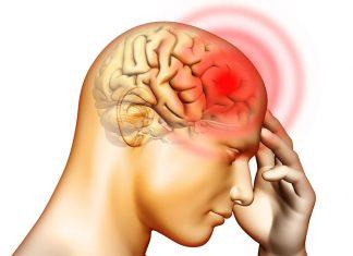 Bas Agrisi Ve Migren 1