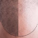 Saç Dökülmesine Ne İyi Gelir (7 Besin)