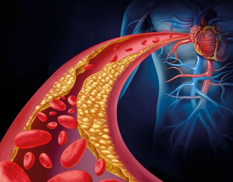 Daha Güçlü Bir Kalp İçin 5 Supplement ve Besin