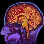 Kafein Beyninizde Nasıl Çalışır?