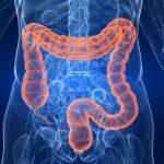 Kırmızı ve Diyet Lifinin Kolorektal Kanseriyle İlişkisi