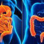 Crohn Hastalığı ve Ülseratif Kolit