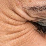 Kollajen, Göz Kenarındaki Kırışıklıkları Tedavi Edebilir Mi?