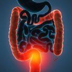 Probiyotikler İltihaplı Bağırsak Hastalığına Yardımcı Olabilir Mi?