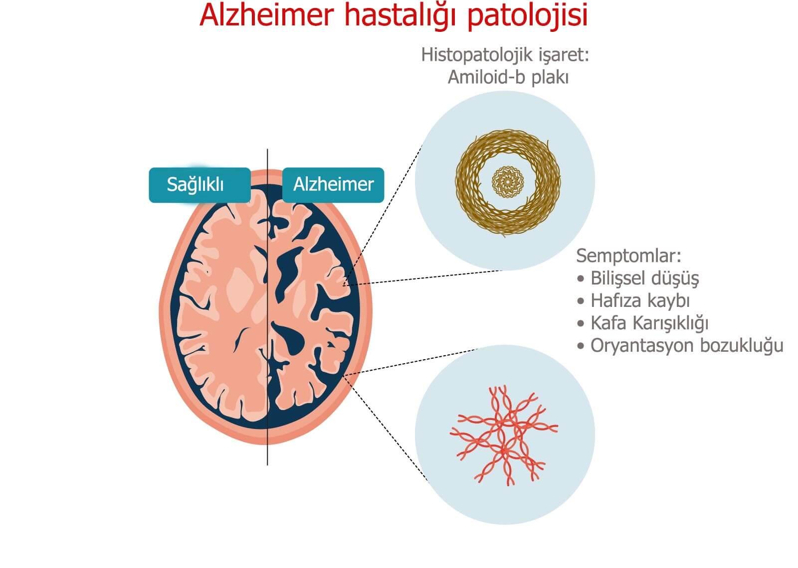 alzheimer hastalığı patolojisi